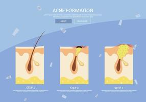 Free Pimple Formation Illustration