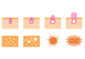 Set Of Pimple Icons