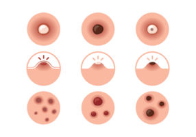 pimple icons vector