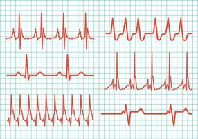 Ícones do vetor do ritmo cardíaco