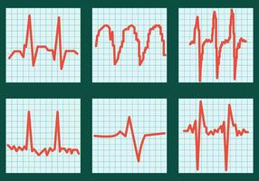 Iconos del vector del ritmo cardíaco
