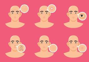 problème de peau d'homme