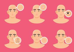 Man Skin Problem