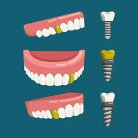 False Teeth With Screw Vector Illustration