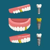 Dentes falsos com ilustração vetorial de parafuso