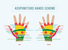 Illustration vectorielle d'acupuncture