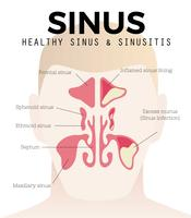 Free Sinus and Sinusitis Vector