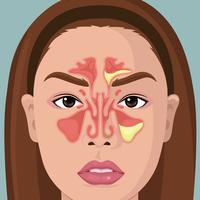 Woman With Illustration Of Paranasal Sinus