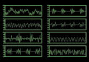 Modèle de vecteur de rythme cardiaque