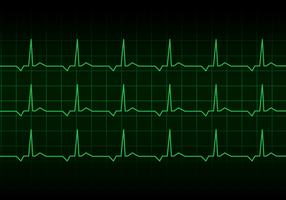 Heartbeat Heart Rhythm Monitor Vector