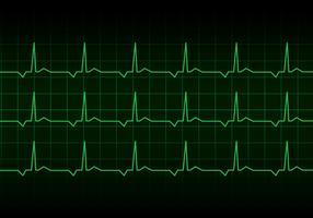 Vetor do monitor do ritmo cardíaco do coração