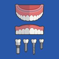 False Teeth With Screw Vector Illustration