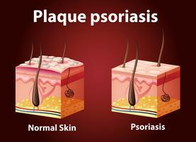 Diagrama que muestra la psoriasis en placa.