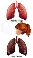 Les femmes qui fument avec des poumons sains et cancéreuses