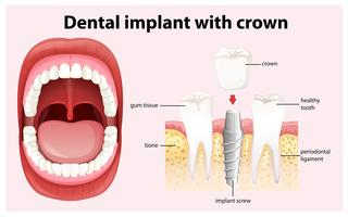 Implante dental con corona vectorial vector