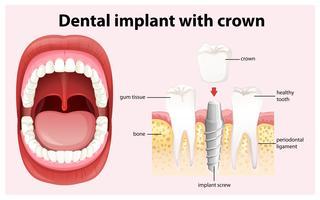 Implant dentaire avec vecteur couronne