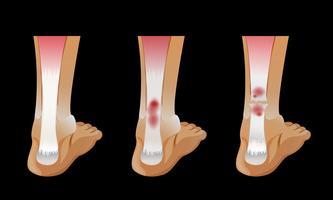 Diagrama que muestra el hueso roto en el pie humano