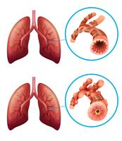 Diagram showing lungs with disease