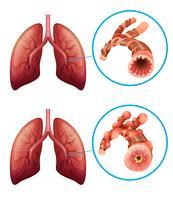 Diagramme montrant les poumons atteints de maladie