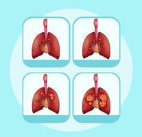 Diagram som visar olika stadier av lungcancer