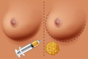 Um vetor de cirurgia de mama
