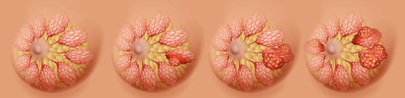 Development of breast cancer in human