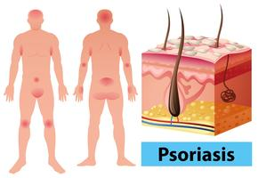 Diagram showing psoriasis in human