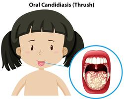 Oral Candidiasis thursh on girl