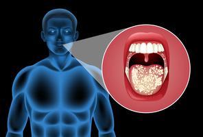 Un vector humano de la boca
