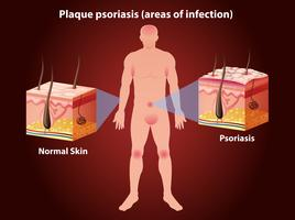 Diagram met plaque psoriasis bij de mens