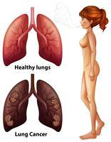 Mänsklig anatomi Lung av rökare