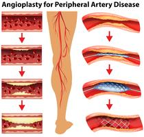 Diagram showing angioplasty for peripheral artery disease vector
