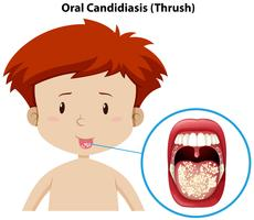 A Young Boy with Oral Candidiasis