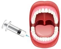 Anatomie de la bouche montrant l'injection de gomme