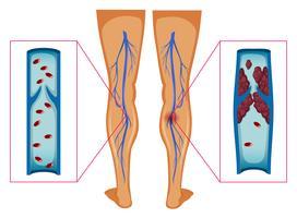 Diagramm, das Blutgerinnsel in den menschlichen Beinen zeigt