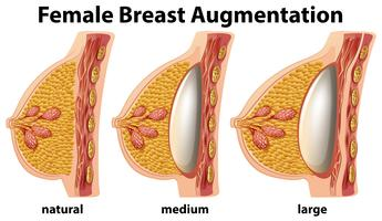 A Set of Female Breast Augmentation