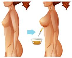 Borstvergroting vetoverdracht methode