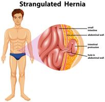 Human Anatomy of Strangulated Hernia