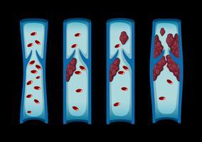 Différents stades de caillot sanguin chez l'homme