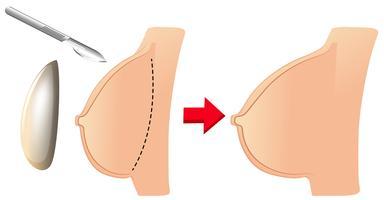 En uppsättning bröstförstoring