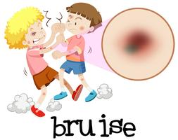 Young boys fighting with magnified bruise vector