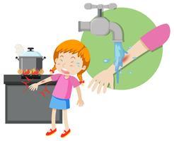 Una niña de primeros auxilios quema
