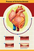 Cartel del proceso de arteriosclerosis.
