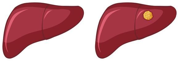 Cáncer en hígado humano sobre fondo blanco