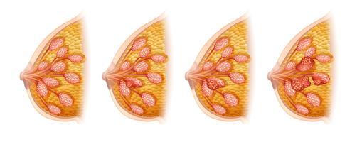 Diagrama mostrando câncer de mama em humanos