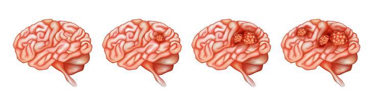 Diferentes etapas del cáncer en el cerebro.