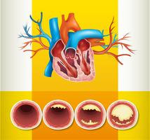 Anatomía del corazón y grasa en vena.