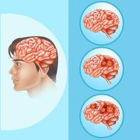 Diagramma che mostra il cancro al cervello nell'essere umano