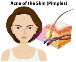 Acne of the skin on a woman vector