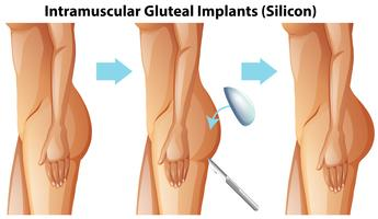 Intramuscular Gluteal Implants on White Background vector